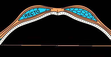 Recto interno o gracilis